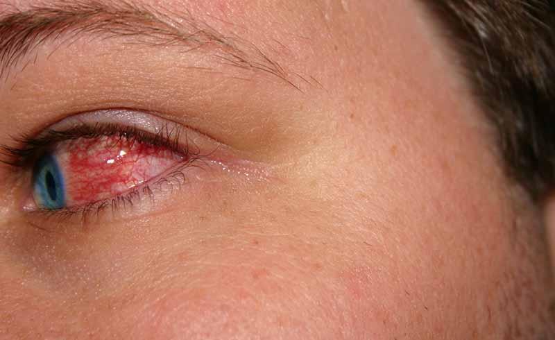 stye on eye, stye, pink eye, pinkeye, eye twitching, how to get rid of pink eye, viral conjunctivitis, stye treatment, eye infection symptoms, watery eyes, itchy eyes