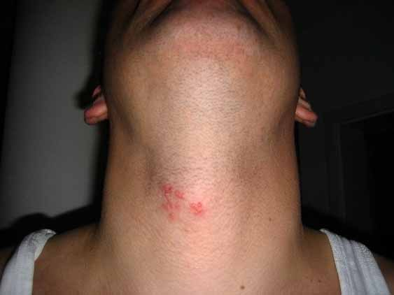 herpes type 1 in the neck